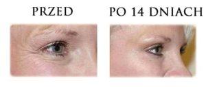 przed-i-po-botox-3