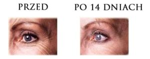 przed-i-po-botox-4