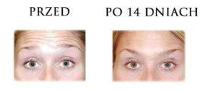 przed-i-po-botox-5