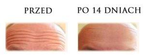 przed-i-po-botox-6
