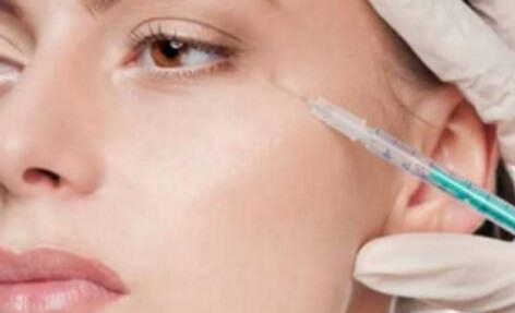 Wypełnianie zmarszczek pod oczami kwasem hialuronowym